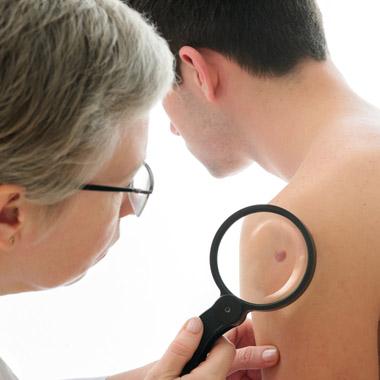 szemölcsök kezelése bőrgyógyász által