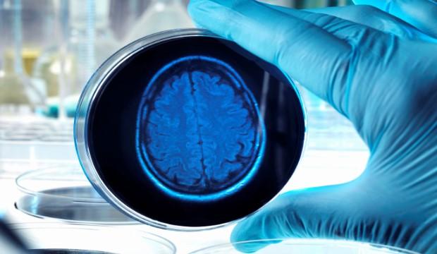 Miért fontos a vérnyomásérték demencia esetén? - HáziPatika
